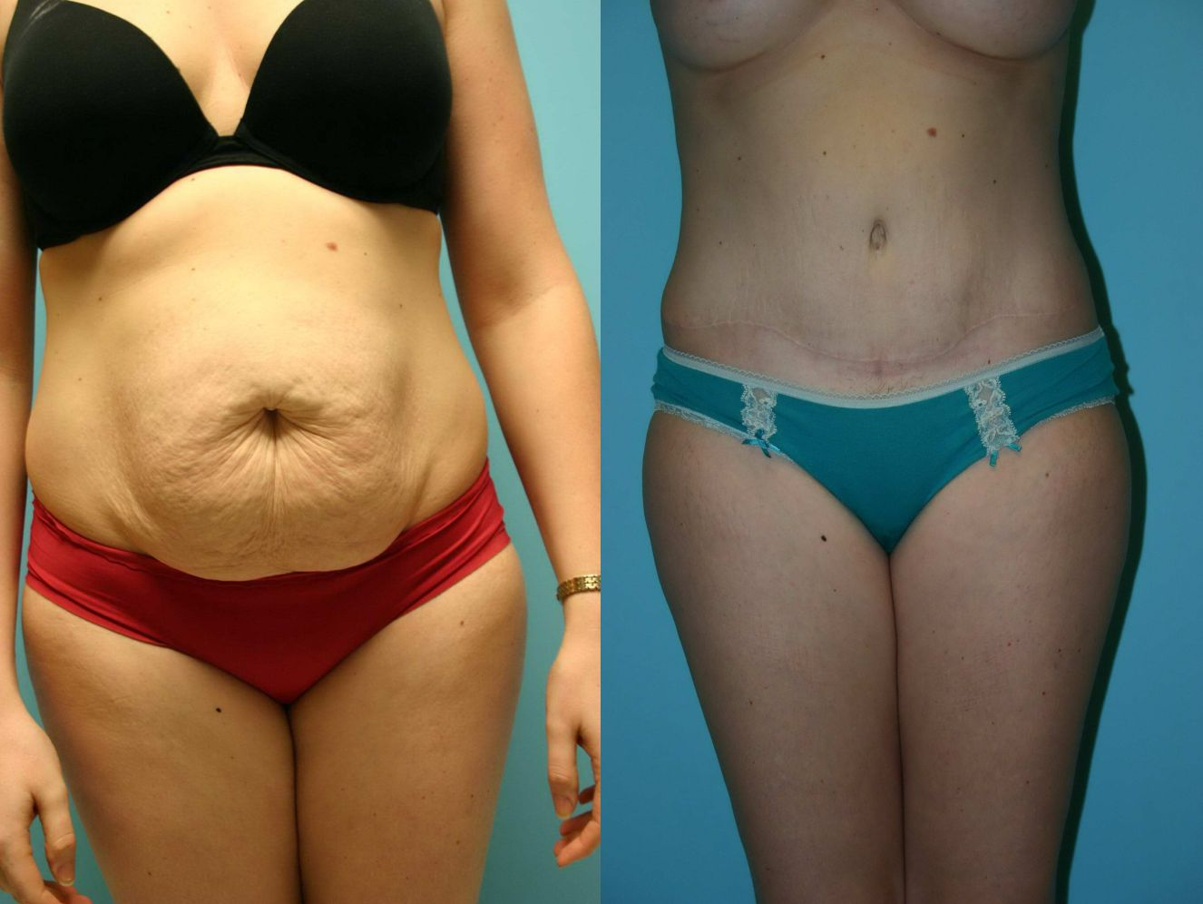 как похудеть после родов таблетки