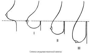 Мастопексия – эндоскопическая операция по круговой подтяжке груди