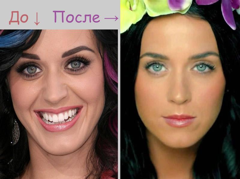 Как убрать синяки под глазами косметология