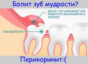 Неправильный зуб мудрости или перикоринит