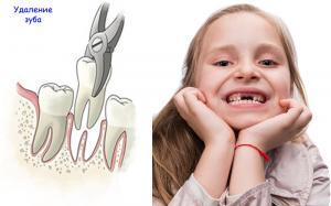 Стоматологи предупреждают о тревожном росте числа удаления зубов у детей